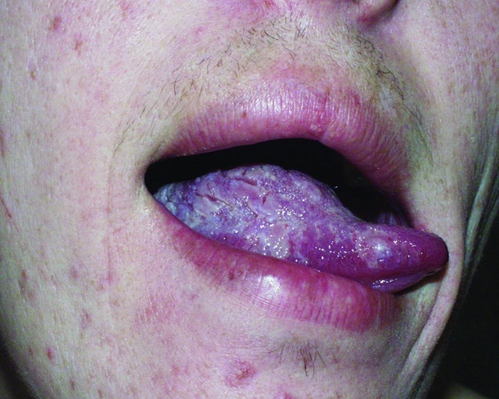 поражение тканей языка